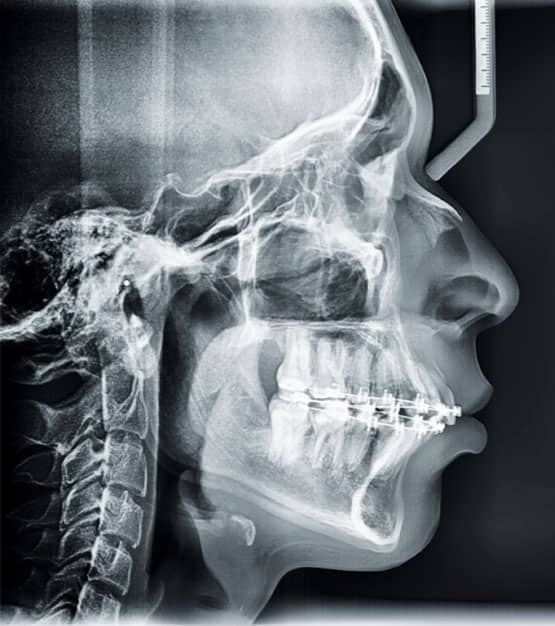 Figura 11. Radiografía lateral de cráneo (progreso).