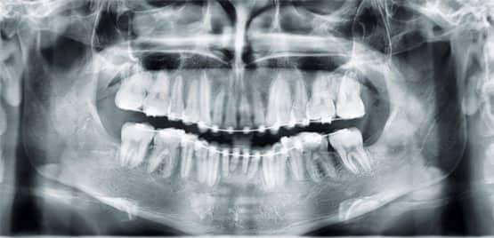 Figura 12. Radiografía panorámica (progreso).