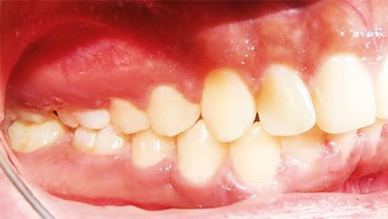 Figura 17. Fotografía intraoral lateral derecha final.