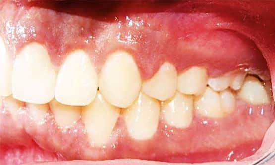 Figura 18. Fotografía intraoral lateral izquierda final.