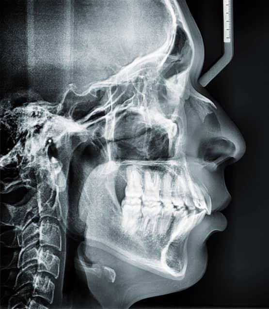 Figura 19. Radiografía lateral de cráneo final.