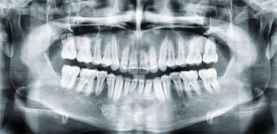 Figura 20. Radiografía panorámica final.
