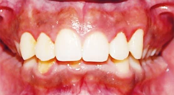 Figura 3. Fotografía intraoral de frente inicial.