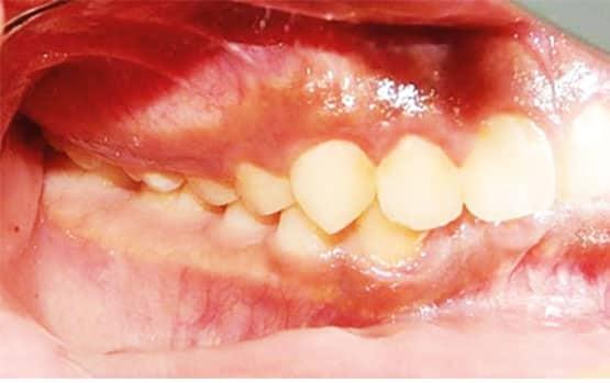 Figura 4. Fotografía intraoral derecha inicial.