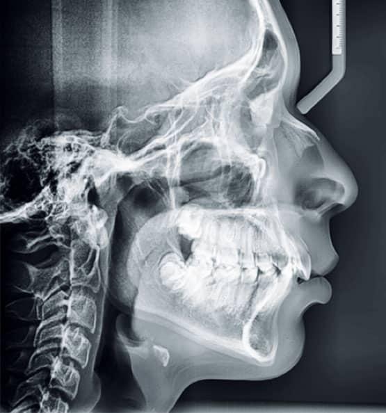 Figura 6. Radiografía lateral de cráneo inicial.