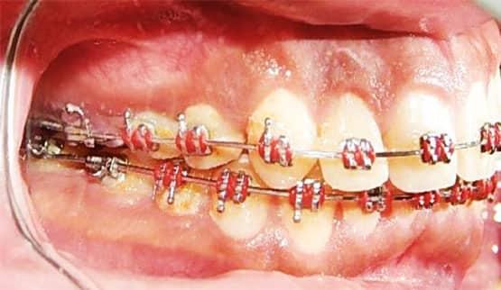 Figura 9. Fotografía intraoral derecha (progreso).