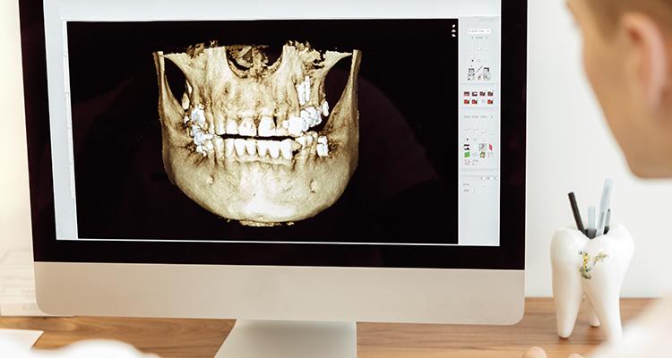 Estudio tomográfico: Estudio del largo y grosor palatino...
