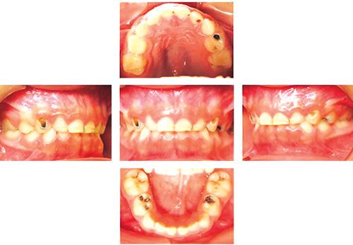 terapia de choque en odontopediatria