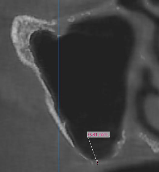 Figura 3. Tomografía computarizada inicial.