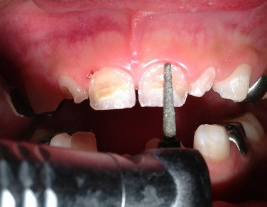 Figura 1B. Foto inicial de la paciente.