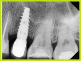 Caso 1. Rx periapical, implante rehabilitado, 4 meses de postoperada, se aprecia seno maxilar íntegro.