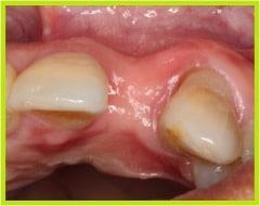 Imagen clínica donde se aprecia el defecto de la cresta alveolar, es un defecto cóncavo de la tabla vestibular.