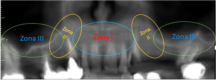 Análisis de hueso remanente en las 3 zonas del maxilar.