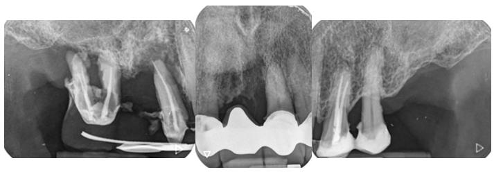 Radiografías periapicales preoperatorias.