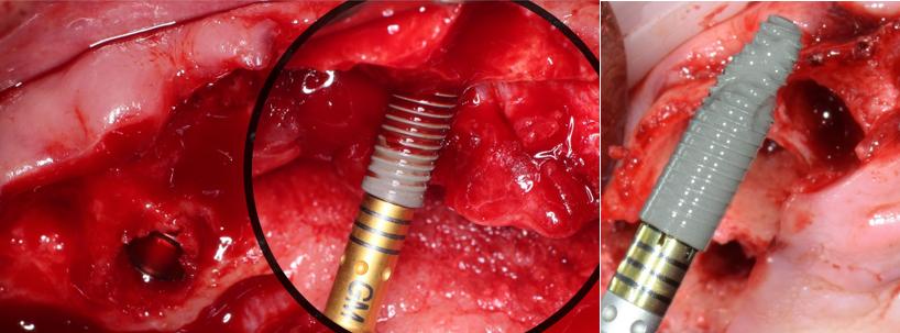 Instalación de implante Helix™ con conexión Grand Morse™ en zona II. Gracias a su cámara helicoidal, sus roscas dinámicas progresivas en combinación con su ápice activo y su punta suave redondeada, posibilita el anclaje inmediato y garantiza una alta estabilidad primaria.
