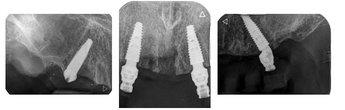 Radiografía de implantes Helix™ con Mini Pilares Grand Morse™ rectos anteriores y angulados a 17° en zonas posteriores.