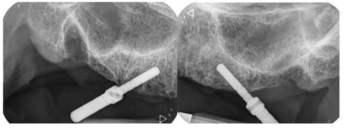 Radiografías transoperatorias para verificar dirección de osteotomía.