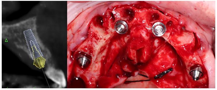 Planeación virtual y colocación quirúrgica de los implantes anteriores.