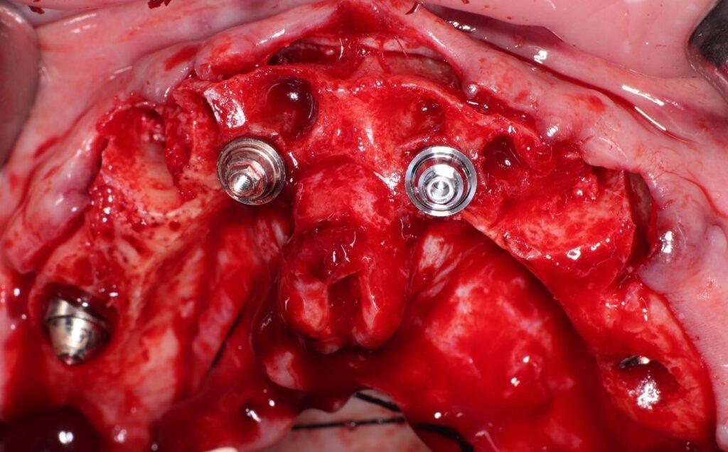 Colocación subcrestal implante inclinado.