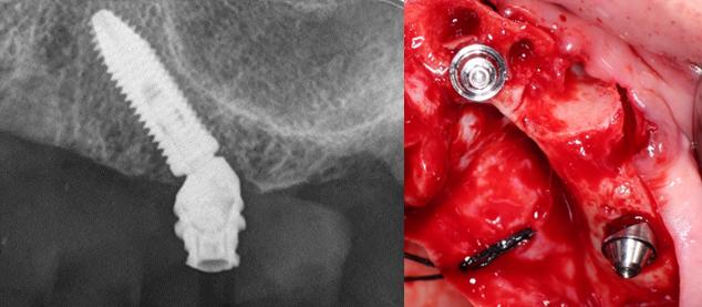 Mini Pilar angulado de 30° en implante inclinado.